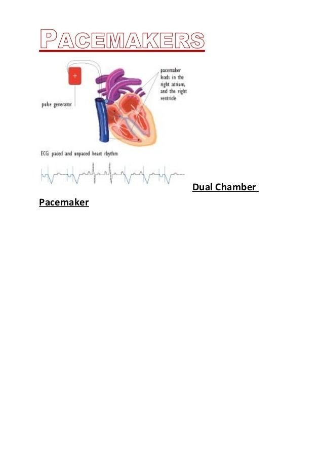 dual chamber pacemaker for jason hagler Also, keep in mind there are two lists - so please check both of them  phil  brillant • alexandra rose brilz • jason brinkerhoff • becky brock • joe brodecki   a chambers • michael chambliss • christopher d chapman • josh  evan  hage • matthew hageman • justin hagler • matt hahn • daniel haight.