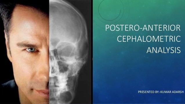 POSTERO-ANTERIOR CEPHALOMETRIC ANALYSIS PRESENTED BY:-KUMAR ADARSH