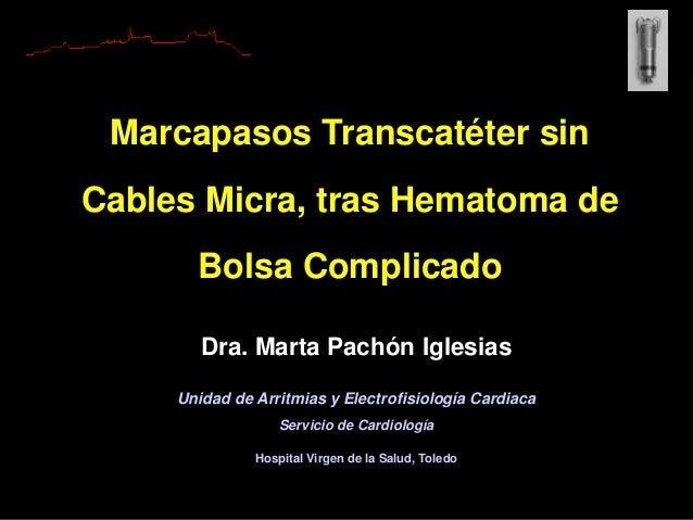 Dra. Marta Pachón Iglesias Unidad de Arritmias y Electrofisiología Cardiaca Servicio de Cardiología Hospital Virgen de la ...