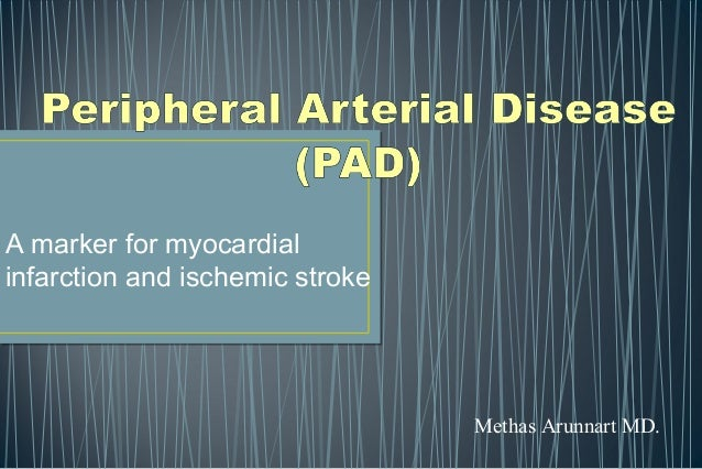 A marker for myocardial infarction and ischemic stroke Methas Arunnart MD.