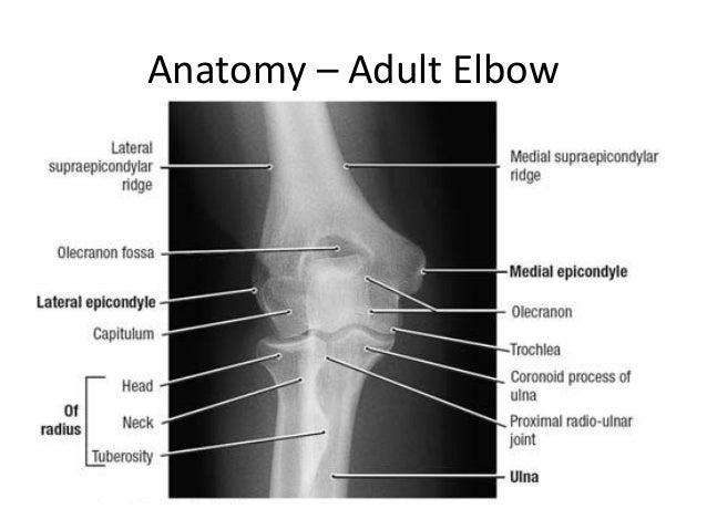 Paediatric Elbow Fractures