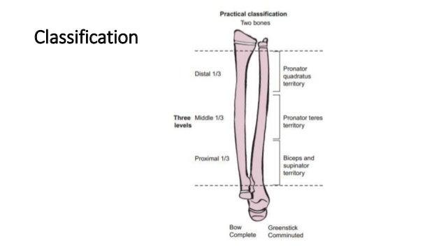 Paediatric Forearm Diaphysial Fractures