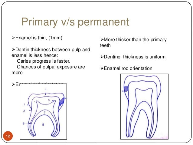 Paediatric operative dentistry primary ccuart Image collections