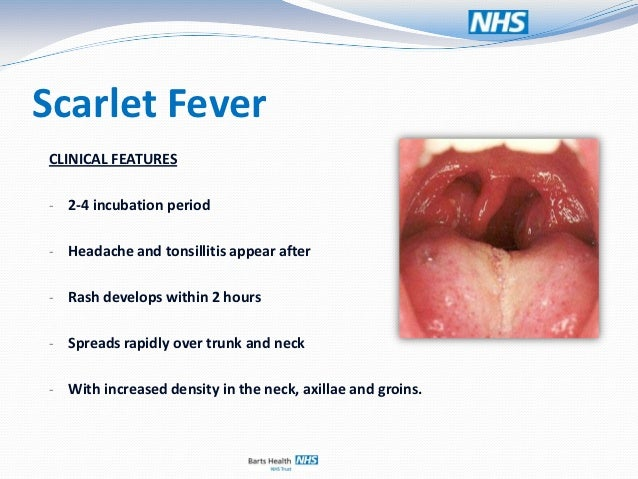 Paediatrics Case Presentation Fever Rash