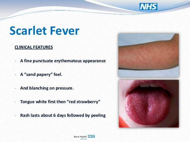 Scarlet fever: Strawberry tongue, other symptoms, & treatment