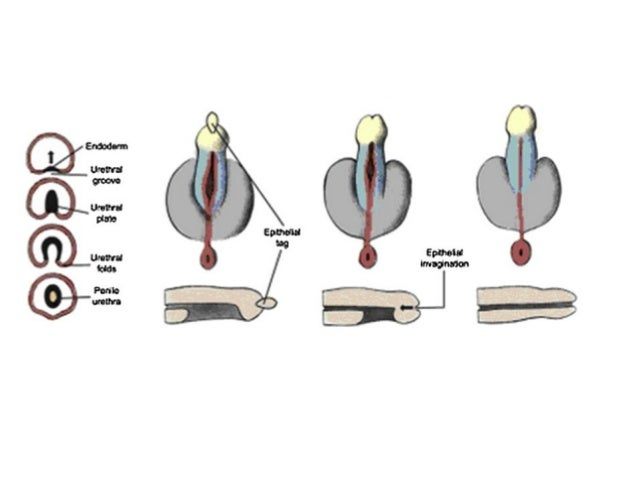 penile adhesions in infants steroid cream