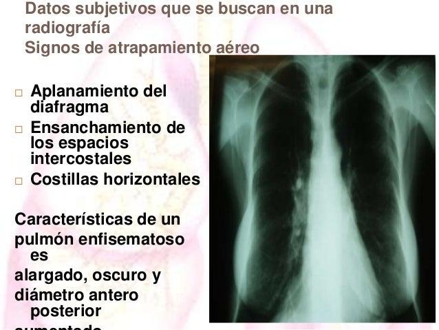 Datos subjetivos que se buscan en una radiografía Signos de atrapamiento aéreo       Aplanamiento del diafragma Ensanch...
