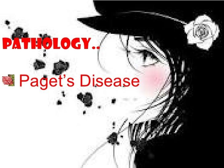 PATHOLOGY.. Paget's Disease
