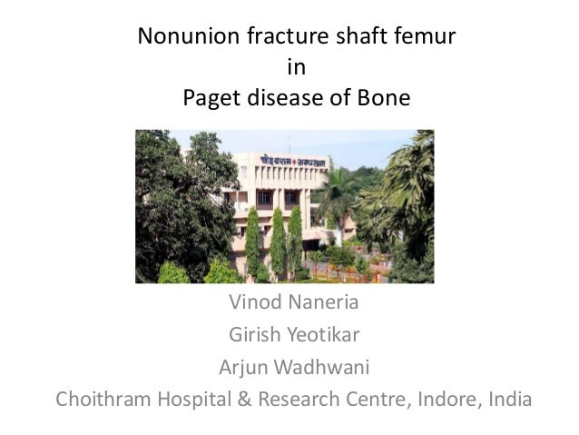 Nonunion fracture shaft femur in Paget disease of Bone Vinod Naneria Girish Yeotikar Arjun Wadhwani Choithram Hospital & R...