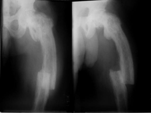 Cancellization of cortex of bone ends Bone holding clamp Bristow elevator End of the proximal fragment