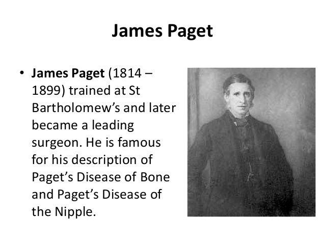 Paget's disease of bone -  Slide 2