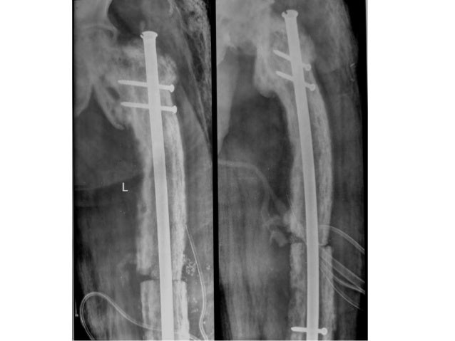 Case 2 cont…… • He was diagnosed as a case of Paget's disease of bone and was put on Bisphosphonate 10mg twice daily for a...