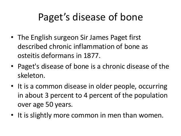 Paget's disease of bone -  Slide 3