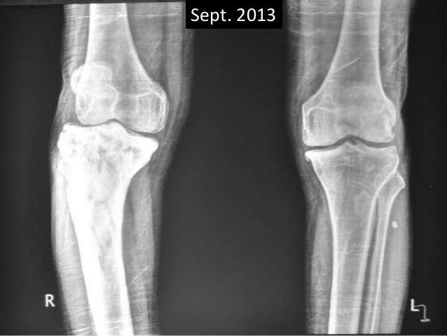 Paget's disease of bone -