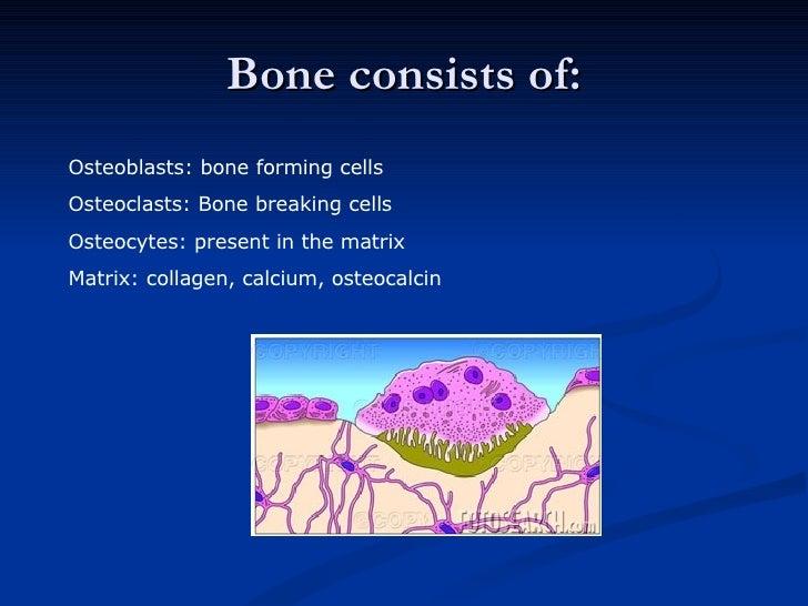 Bone consists of: Osteoblasts: bone forming cells Osteoclasts: Bone breaking cells Osteocytes: present in the matrix Matri...