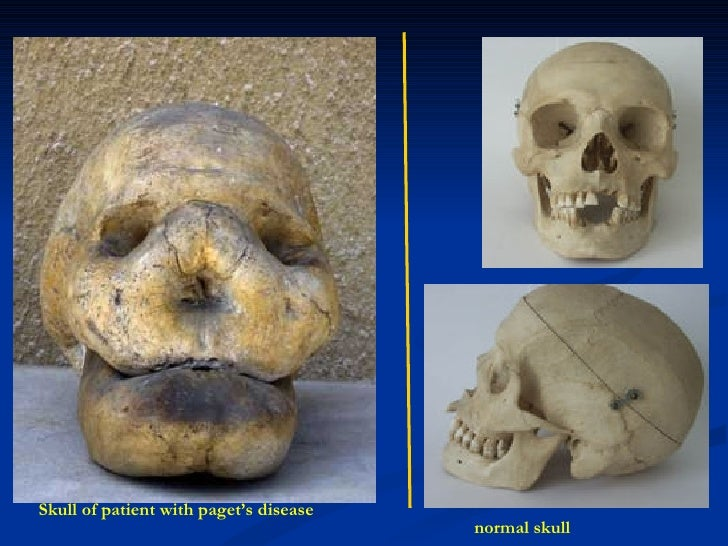Skull of patient with paget's disease normal skull