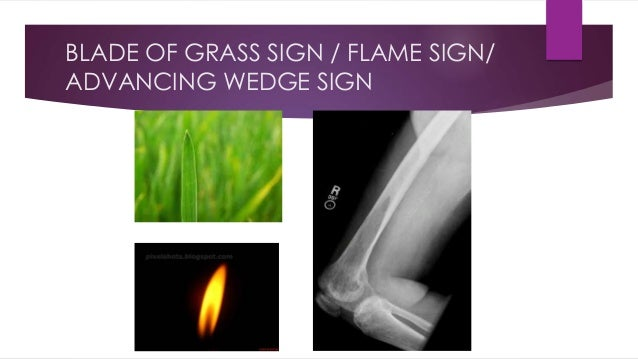 BLADE OF GRASS SIGN / FLAME SIGN/ ADVANCING WEDGE SIGN