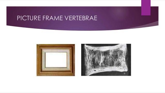 PICTURE FRAME VERTEBRAE