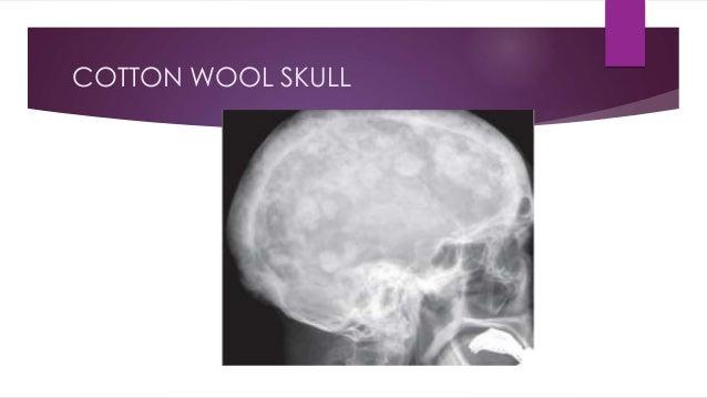 COTTON WOOL SKULL