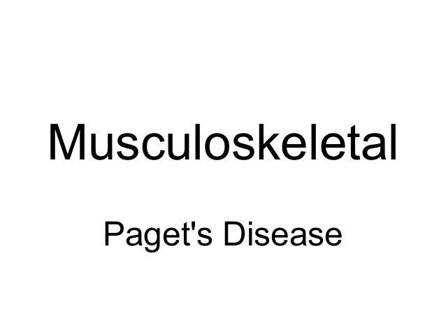 Musculoskeletal Paget's Disease