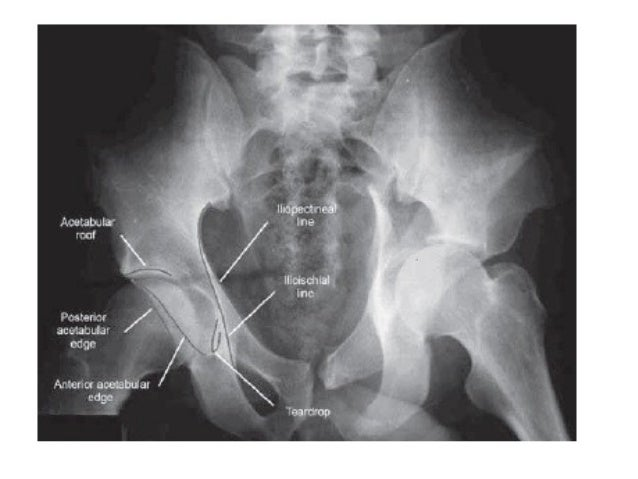 Bilateral acetabular protrusio (white arrows) , the femoral head should not extend medial to a line drawn from the lateral...