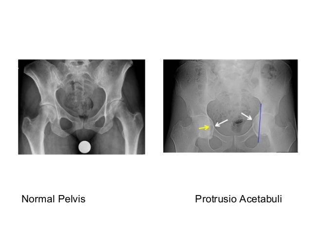Picture frame vertebral body