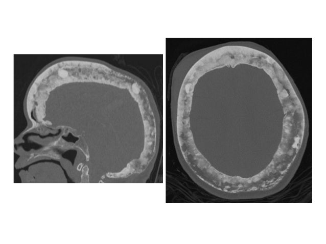 Diagnostic Imaging of Paget's Disease