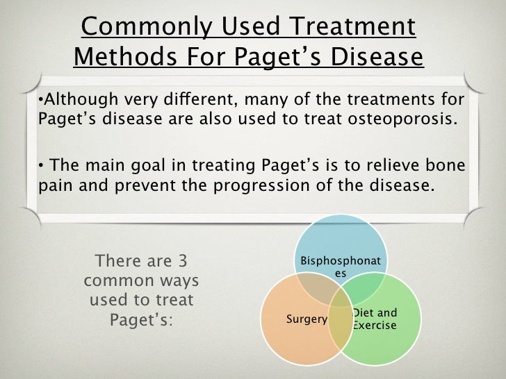 Pagets disease of bone causes and treatments