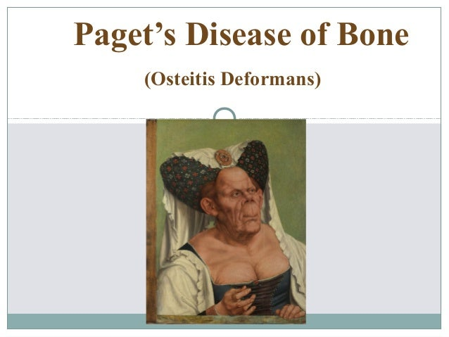 Paget's Disease of Bone (Osteitis Deformans)