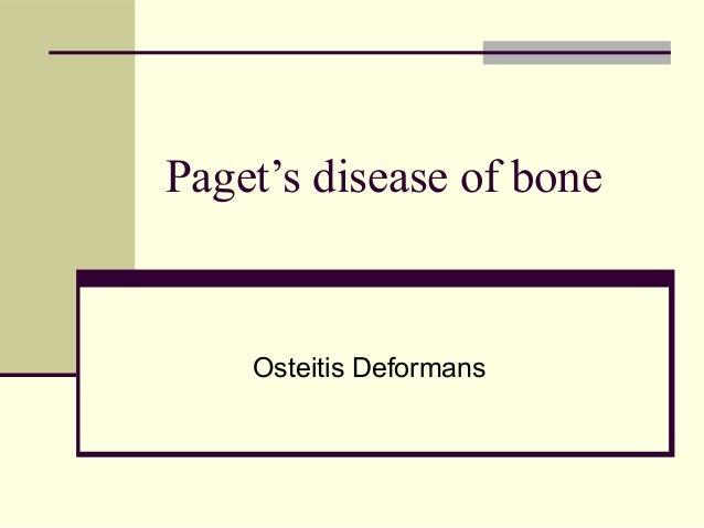 Paget's disease of bone Osteitis Deformans