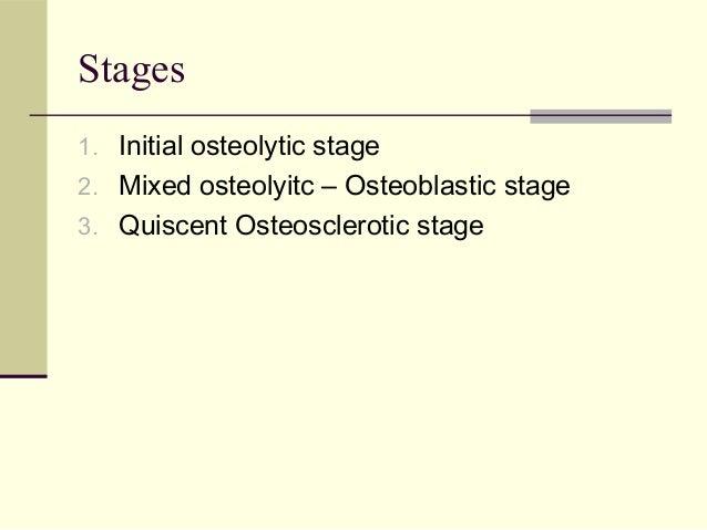 Paget's disease of bone Slide 3
