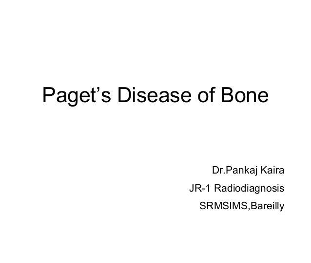 Paget's Disease of Bone Dr.Pankaj Kaira JR-1 Radiodiagnosis SRMSIMS,Bareilly