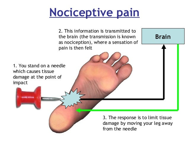 Nociceptive pain Brain 1. You stand on a needle which causes tissue damage at the point of impact 2. This information is t...