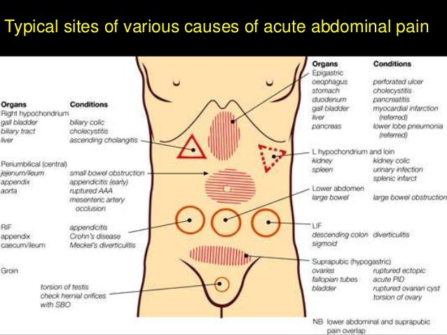 Gynecological Causes Of Acute Abdominal Pain