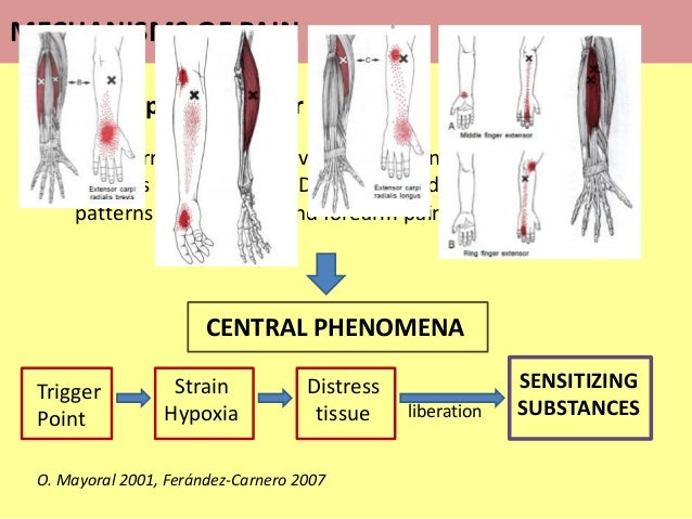 Referred pain in Trigger Points…  Referred pain in active Trigger Points in the forearm muscles (ECRB, ECRL, EDC, brachio...