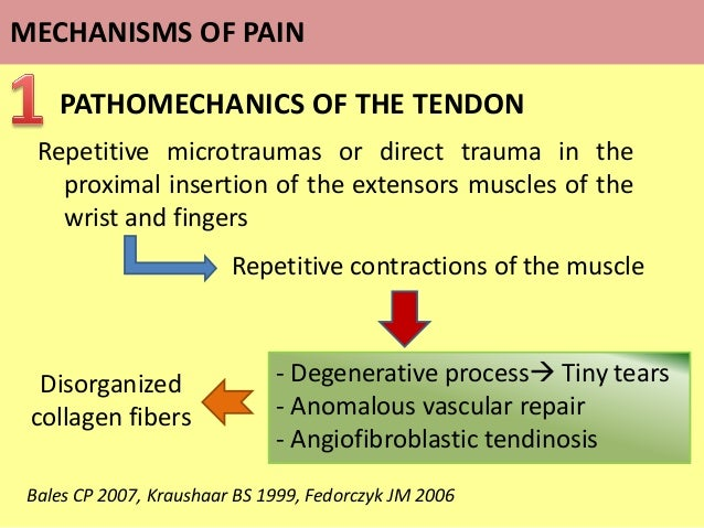 Repetitive microtraumas or direct trauma in the proximal insertion of the extensors muscles of the wrist and fingers PATHO...