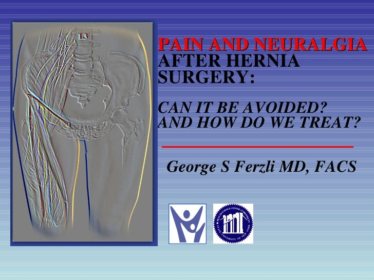 PAIN AND NEURALGIA  AFTER HERNIA SURGERY: CAN IT BE AVOIDED? AND HOW DO WE TREAT? <ul><li>George S Ferzli MD, FACS </li></ul>