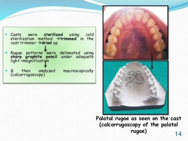 (PDF) Study of palatal rugae pattern among the student ...
