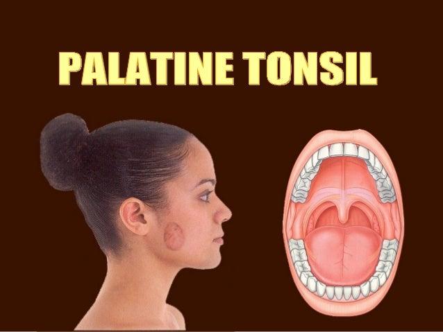 Palatine tonsil