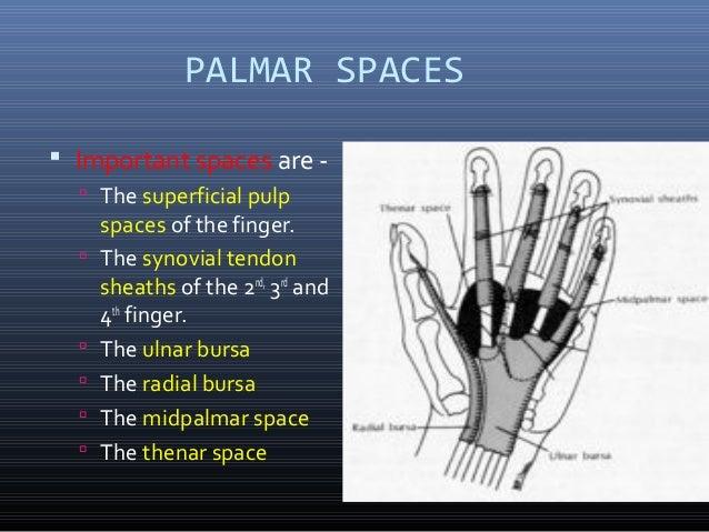 Palmar spaces - Types / contents