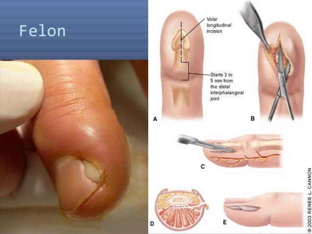 Whitlow Symptoms, Diagnosis, Treatments and Causes ...