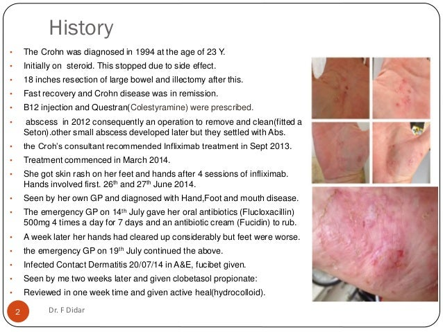 Palmoplantar Pustolar Psoriasis Induced With Infliximab In