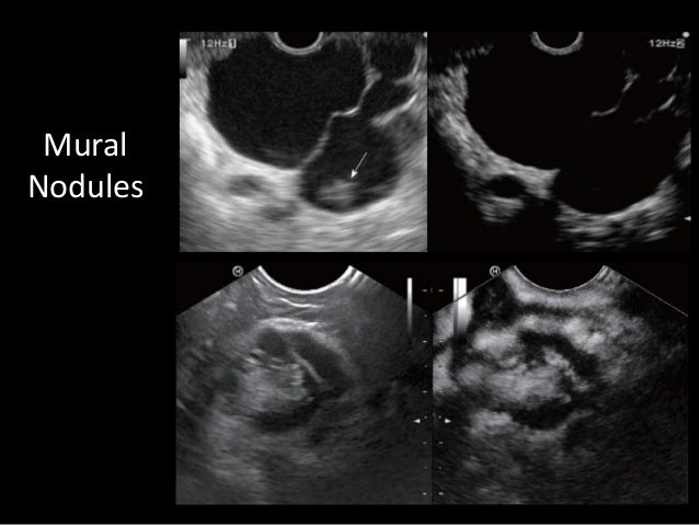 Pancreatic cysts a contemporary approach for Cystic lesion with mural nodule