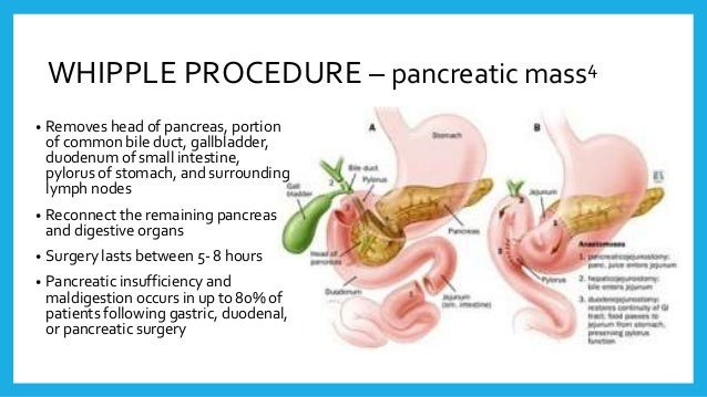 Pancrealipase (Creon) use in Pancreatic Disorders