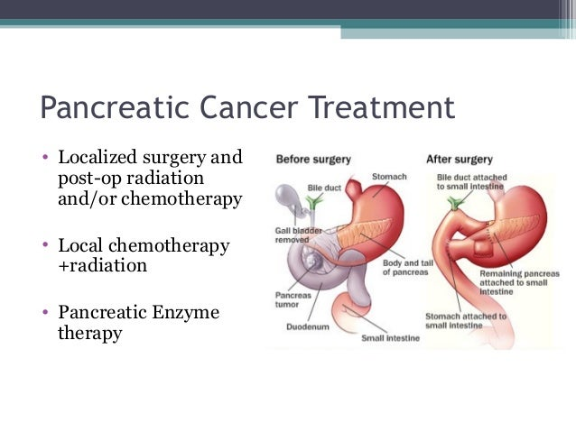 possible cancer treatments essay Treatment of leukemia is very complex treatments are tailored to fit each patient's needs the treatment depends on the type of the cancer and features of the cells.