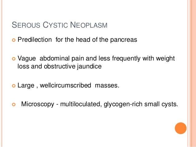 Pancreatic Neoplasms