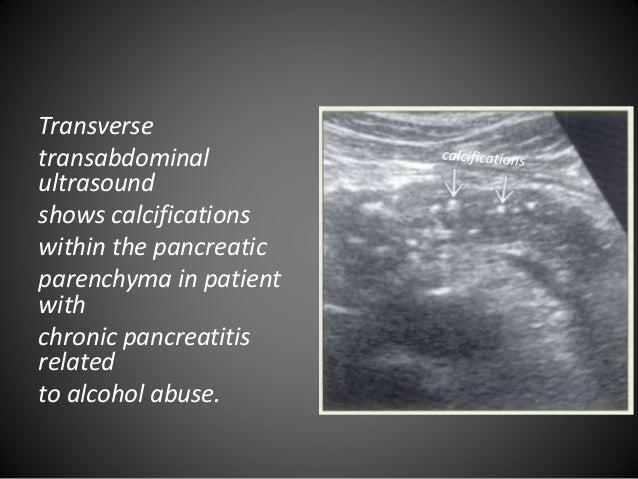Pancreatic sonographic anatomy