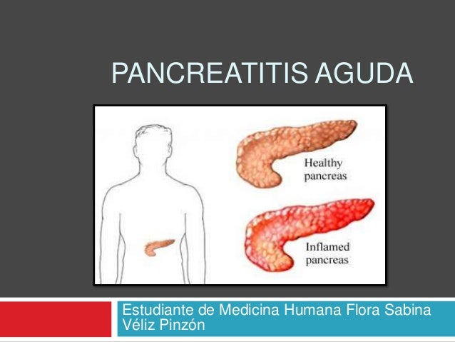 PANCREATITIS AGUDAEstudiante de Medicina Humana Flora SabinaVéliz Pinzón