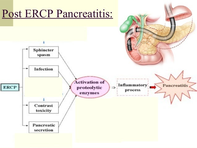★ 27 Top Post Ercp Pancreatitis Diet Today