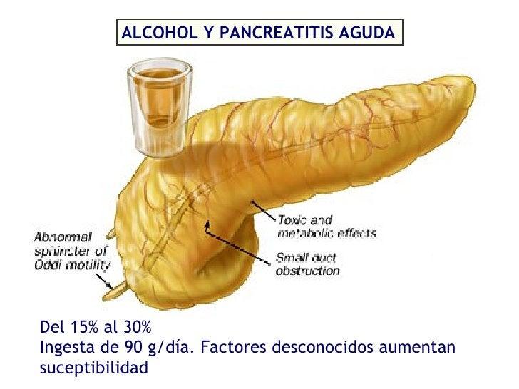 ALCOHOL Y PANCREATITIS AGUDA Ingesta de 90 g/día. Factores desconocidos aumentan suceptibilidad Del 15% al 30%